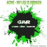 My Leg Is Broken