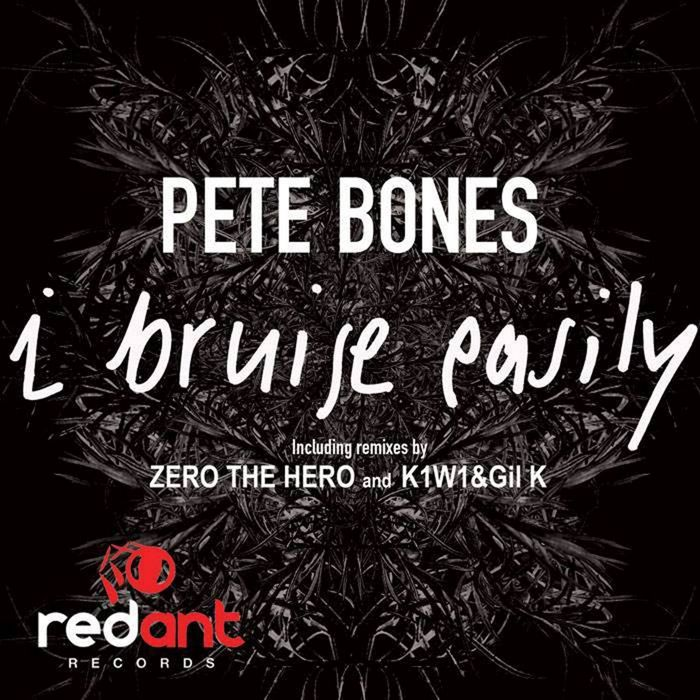 PETE BONES - I Bruise Easily