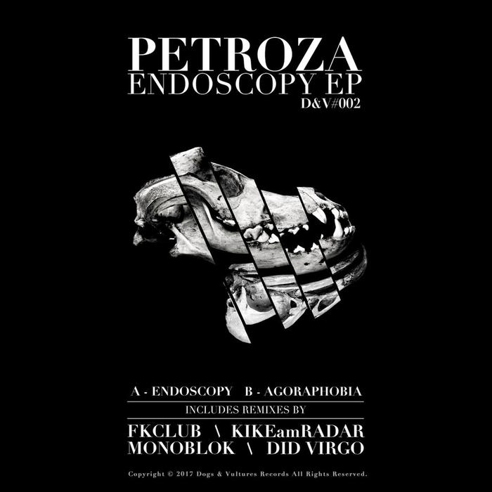 PETROZA - Endoscopy EP